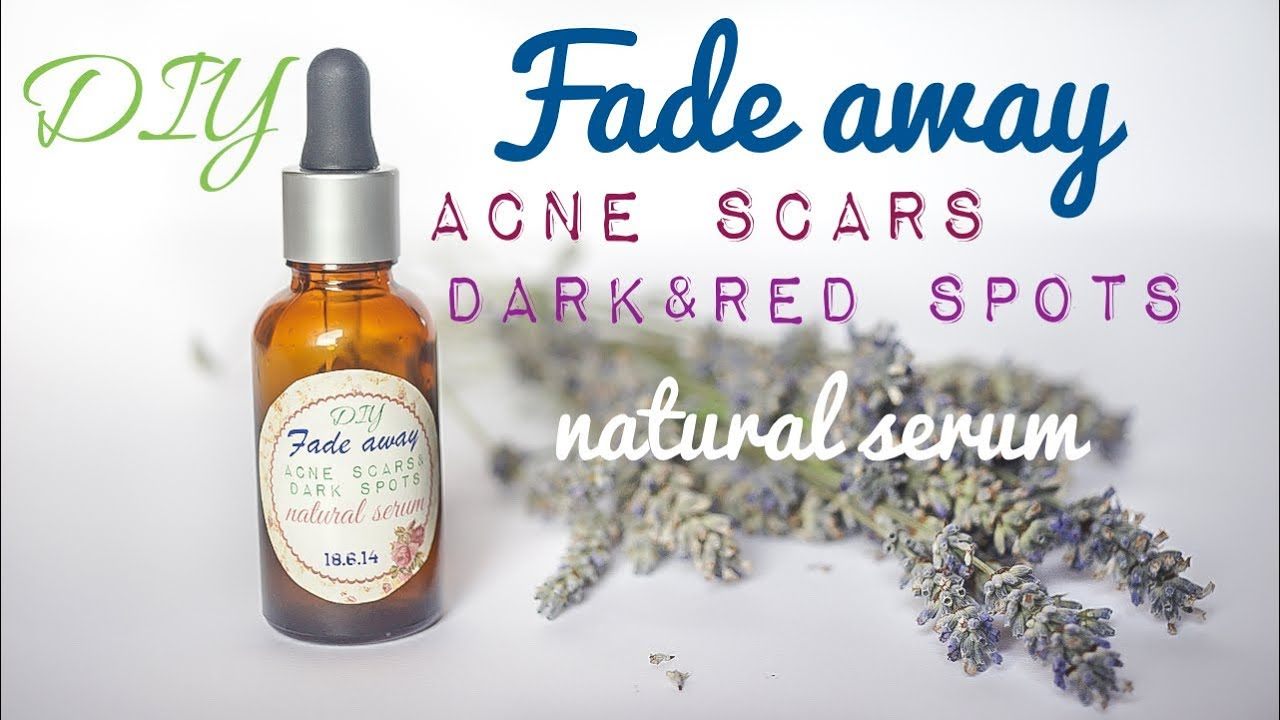Removing Acne Scars
