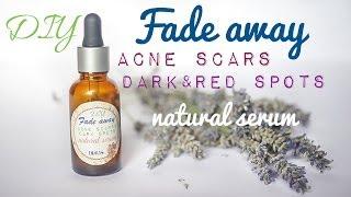 DIY Acne Scars & Rosacea Fade Away Serum Using Rose Hip & Ribes Nigrum Seed Oils Thumbnail