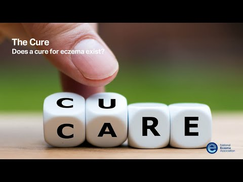 The Cure: Does a cure for eczema exist?