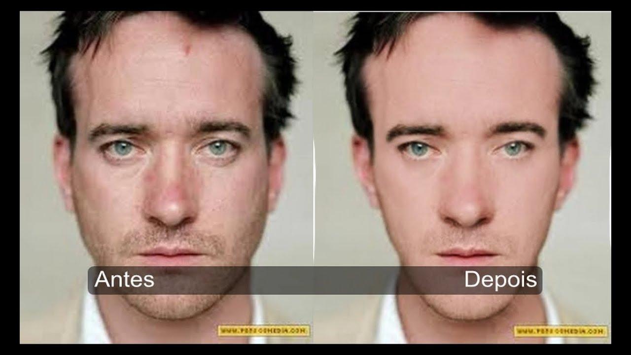 Tirando Manchas E Modificando A Estetica Do Rosto Com Photoshop Cs6