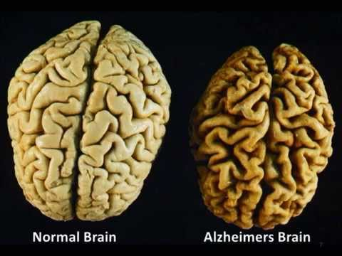 Cannabis and Alzheimer's Disease - Short Documentary