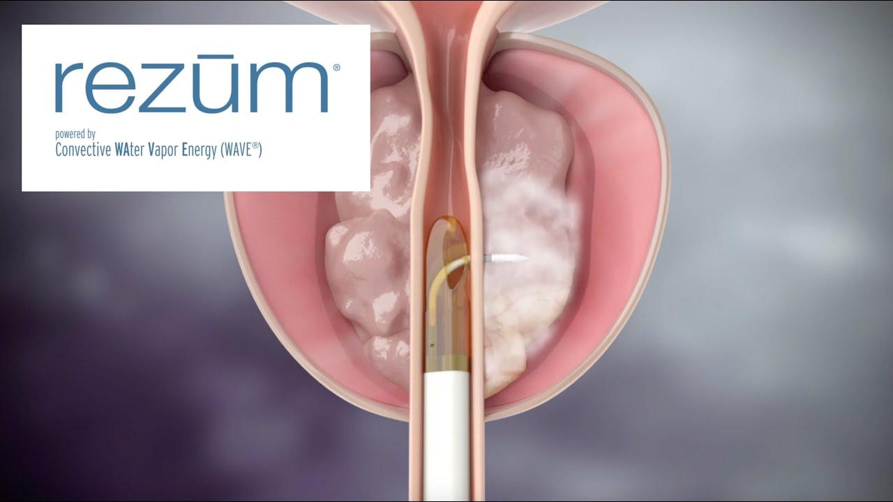eiaculazione dopo un intervento chirurgico alla prostata rezum