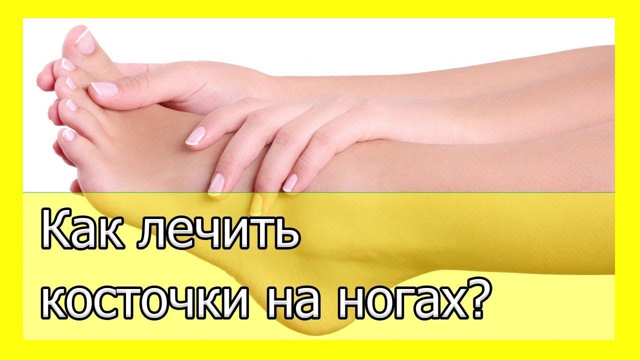 Косточки на ногах лечение причины и симптомы