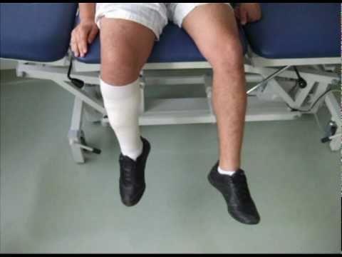 Lesion nervio femoral - YouTube