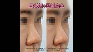 부산성형외과 코성형+콧볼축소 후기