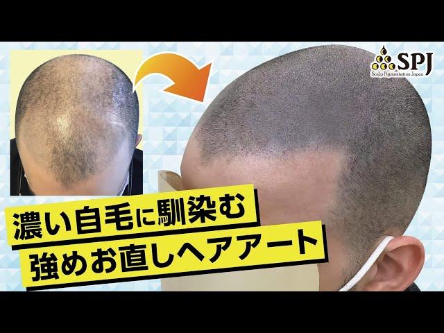 薄毛が進行した場合のメンテナンス