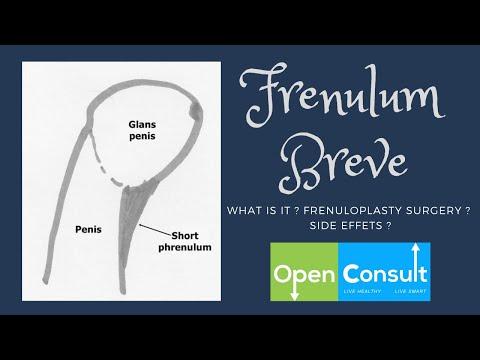 Penis frenulum breve