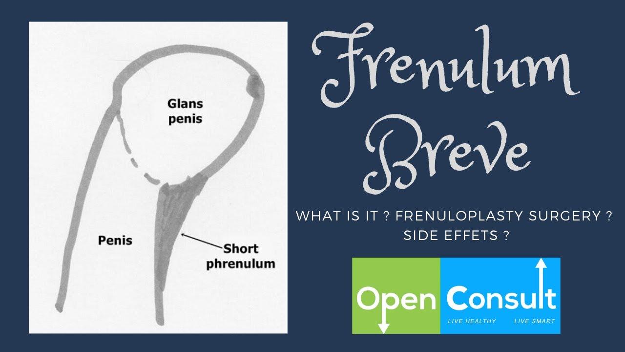 Breve operacija frenulum Frenulum Tying!