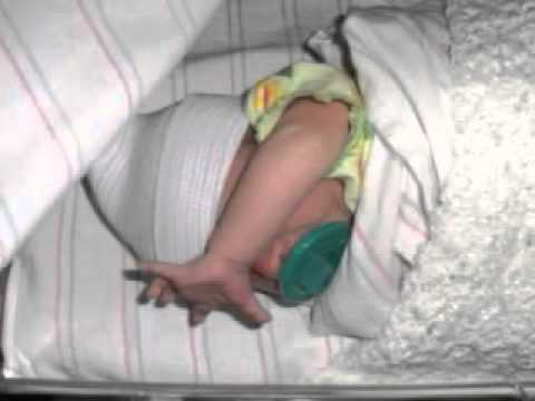 baby born at 31 weeks with steroids