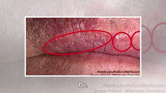 How to get rid of fordyce spots on lips naturally at home – Small