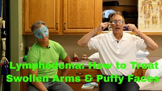 Lymphedema: How to Treat Swollen Arms & Puffy Faces.