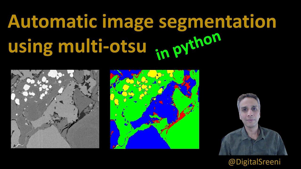 Auto Segmentation using Multi-Otsu