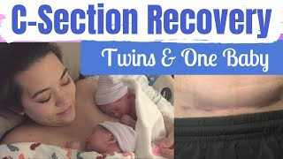 C-SECTION RECOVERY TWINS & BABY | C-Section Recovery Tips | Postpartum Care | Mai Zimmy