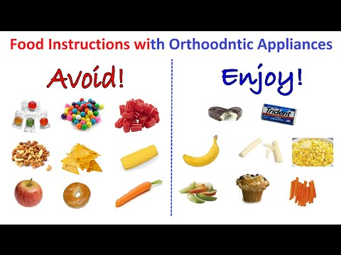 What Sort Of Foods You Should Not Eat While Wearing Orthodontic