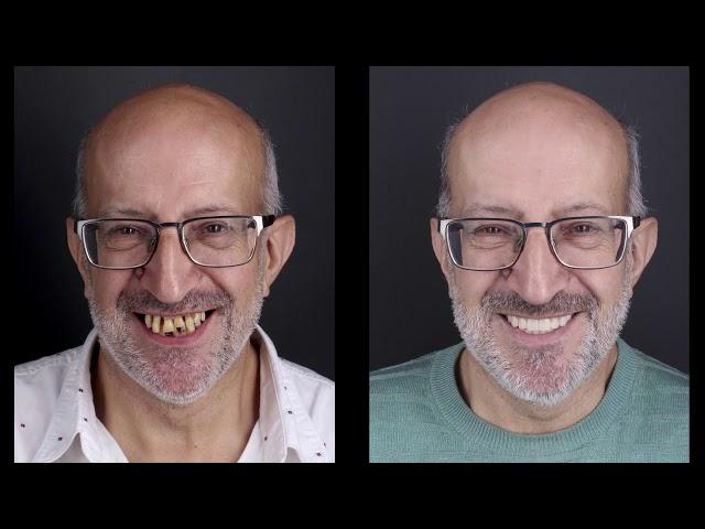 Implantes dentales inmediatos y prótesis dental