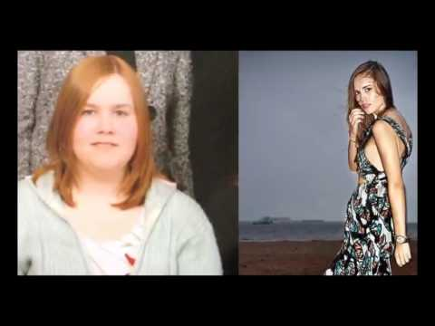 Похудевшие люди фото до и после
