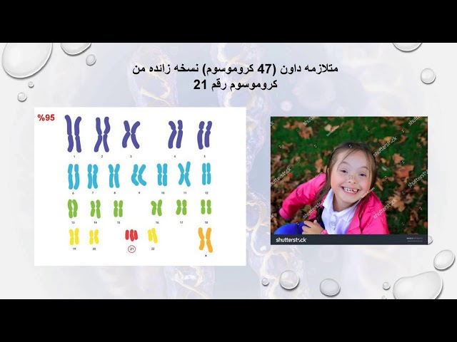 ندوة اليوم العالمي للأمراض النادرة 28 فبراير 2021