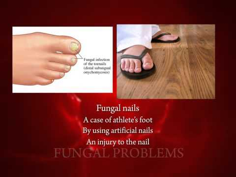 Athletes Foot (Tinea Pedis) and Nail Fungus (Onychomycosis)