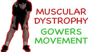 Muscular Dystrophy Gowers Maneuver thumbnail