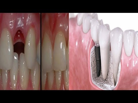 Amazing Discovery Goodbye Dental Implants Here's How to Grow
