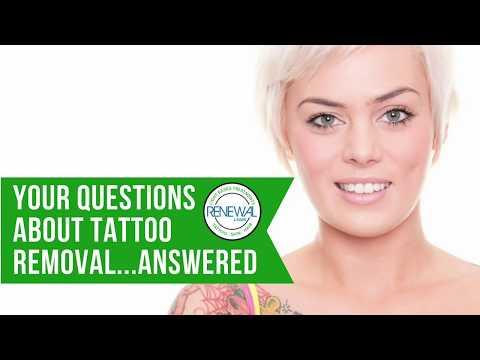 Renewal Laser Tattoo Removal | Lake Worth FL | Palm Beach County\'s ...