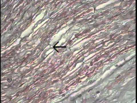 Nerve Tissue Anatomy 2203