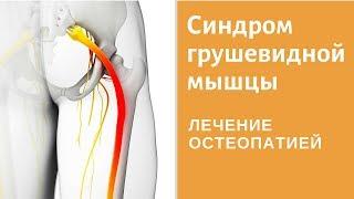 Что такое синдром грушевидной мышцы? Причины возникновения синдрома грушевидной мышцы. Лечение