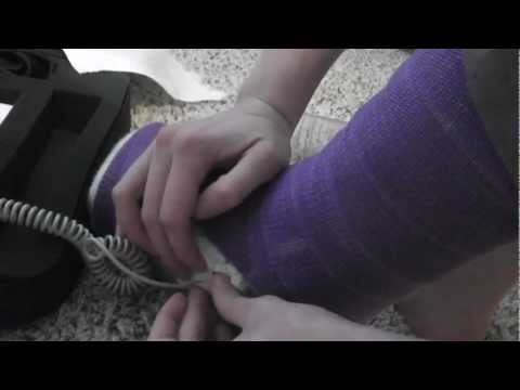 How to Boost the Healing of Stress Fractures + Exogen Bone Stimulator Demo