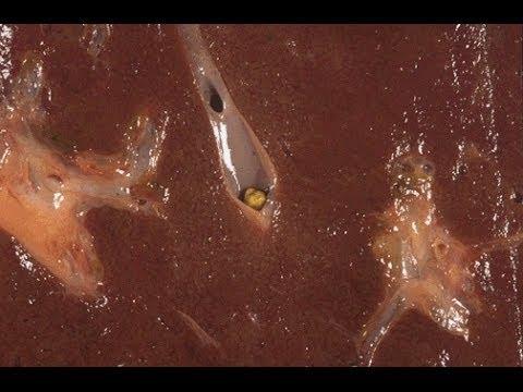 Gall Bladder Liver Flush Cleansing Gallbladder Gall