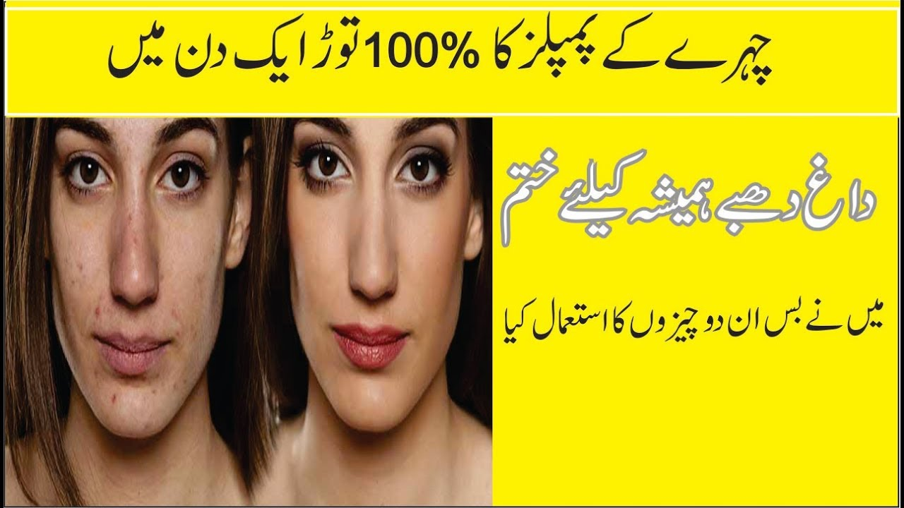 Home Remedy For Pimples Desi Totkay For Pimples In Urdu Get