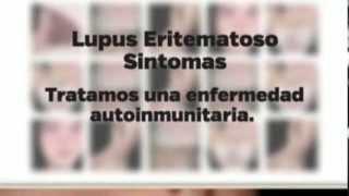 Lupus Eritematoso Sintomas
