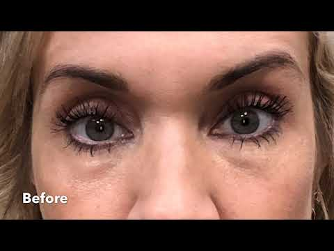 Under Eye Filler with Robb.. With Immediate Results!!
