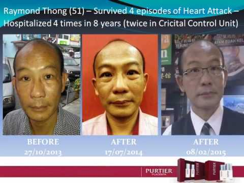 Purtier Philippines Live Stem Cell Testimonials compilation 1 (Metro Manila, Quezon City)