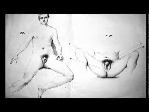 L'ermafroditismo nel XIX secolo: Lorenzutti - Di un seudo-ermafrodismo succinta descrizione - 1844