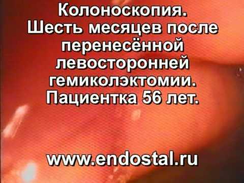 Лечение после удаления полипа эндометрия..