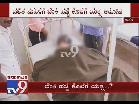 Illegal Love Affair: Dalit Woman Set On Fire by Her Lover at Gadag