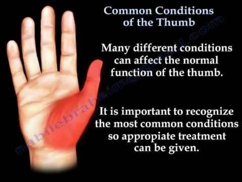 Common Conditions Of The Thumb - Everything You Need To Know - Dr  Nabil  Ebraheim