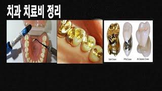 치과 치료비 정리 /  레진 , 인레이 ,  크라운