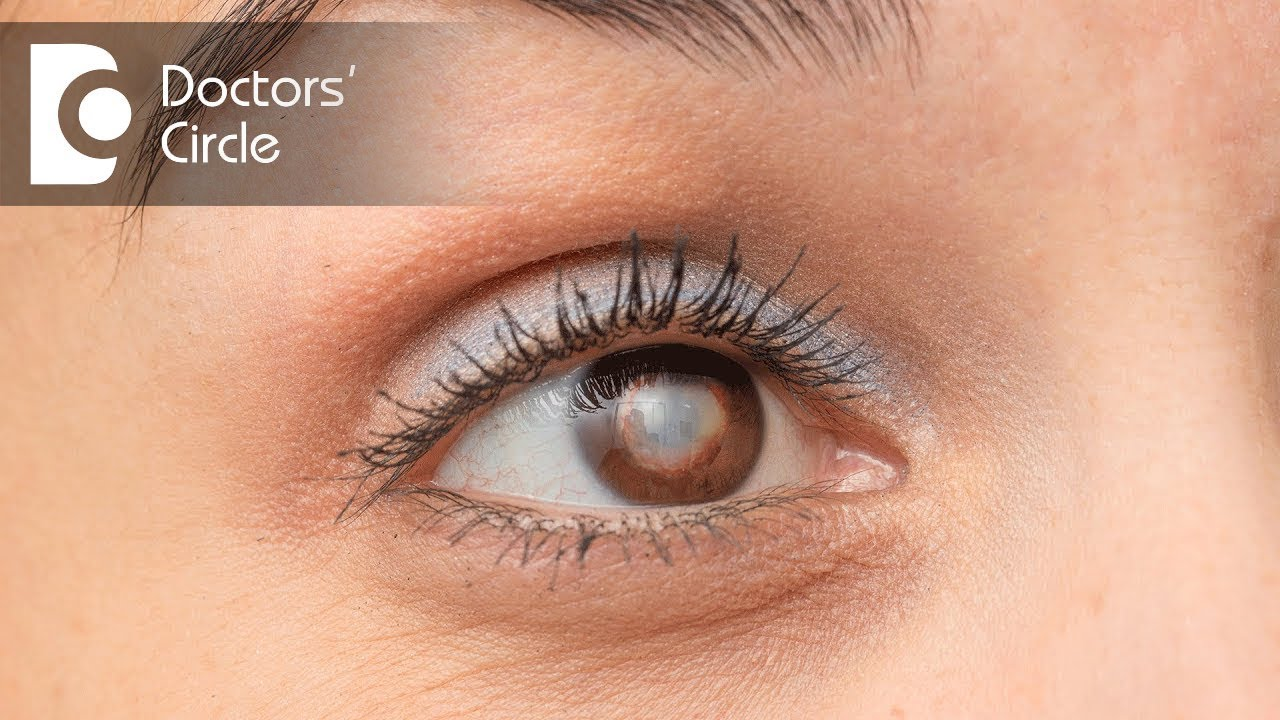be2034cc59d Which is the best Intraocular Lens suited for eyes  Dr. Samina F Zamindar