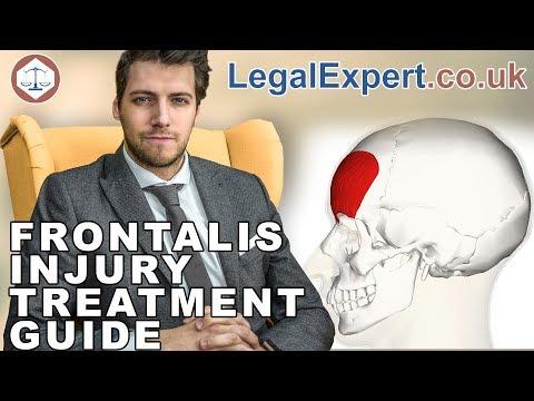 Frontalis Injury Treatment Guide ( 2019 ) UK