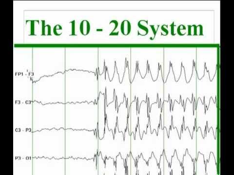 The International 10-20 system