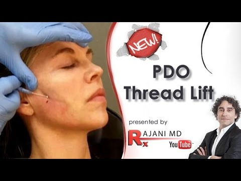 PDO Thread Lift FaceliftDr Rajani