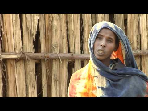 Community-based nutrition programme targets children at risk in Ethiopia
