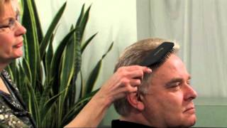 Restore Early Onset Male Balding--Category One Hair Loss Symptoms