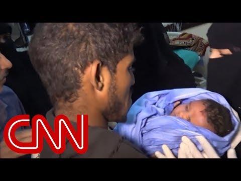 Rare glimpse into Yemen's bloody war