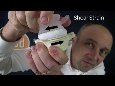 Shear Strain   Dynamic Disc Modeling