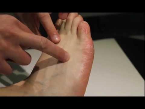 Wo liegt Gallenblase 41 (Gb 41, Zu Lin Qi) - YouTube