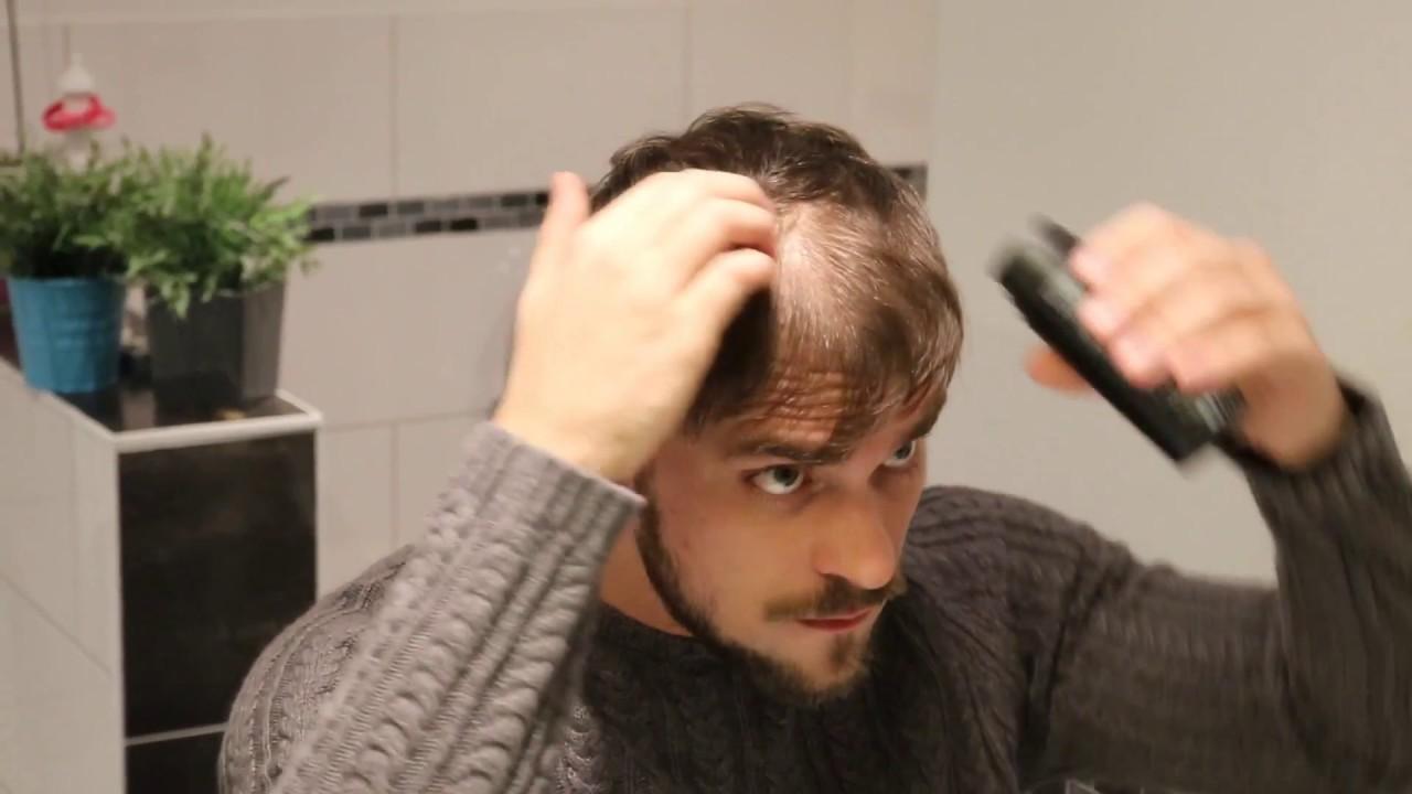 coiffure pour cacher calvitie femme