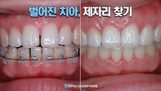 [밝은미소치과] 벌어진 치아, 제자리 찾기