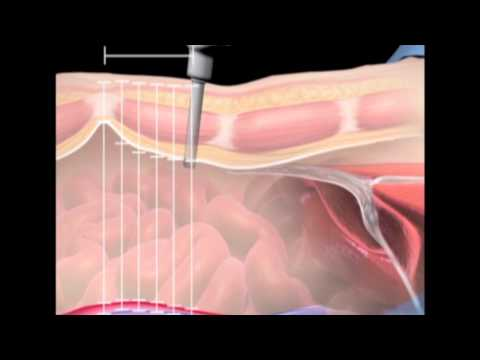 Surgical anatomy of supraumbilical port placement Implications robotic advanced laparoscopic surgery
